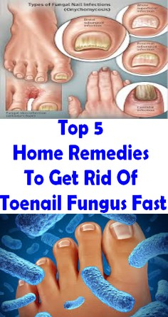 Top 5 Home Remedies To Get Rid Of Toenail Fungus Fast